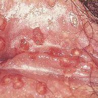 Herpes progenitalis
